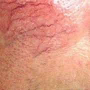 Traitement Laser vasculaire en Tunisie